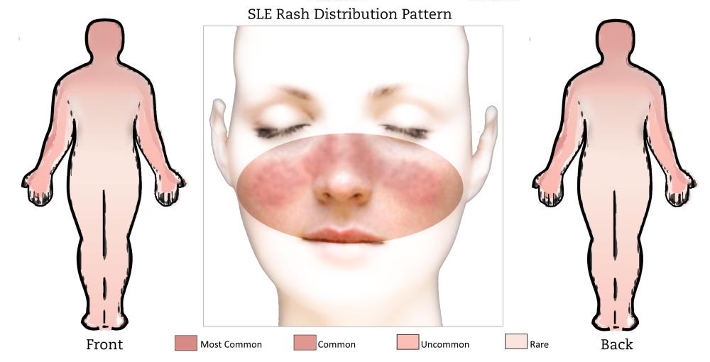 SLE Rash Distribution Pattern
